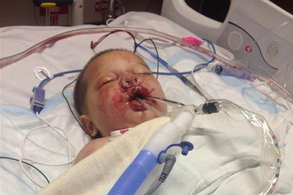 Habersham County Baby Injured During Police Raid